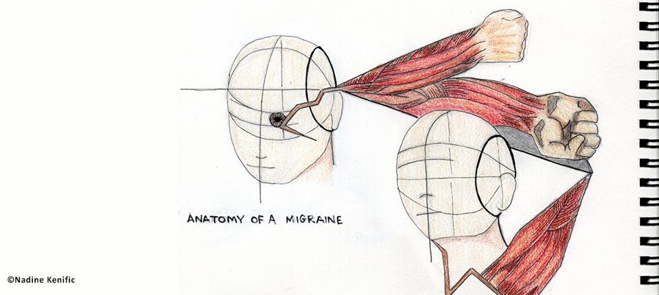 migraine canal carpien