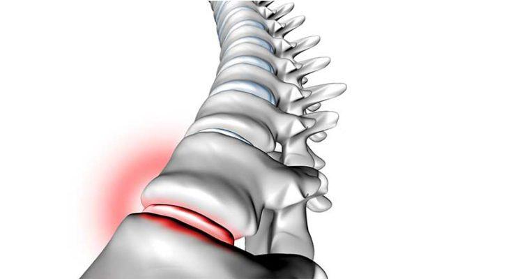 4. Mal de dos : un symptôme et non une maladie