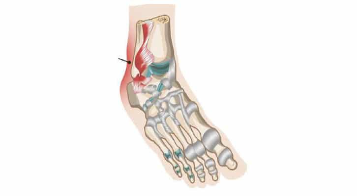 Le paratendon talon d'Achille des tendinopathies