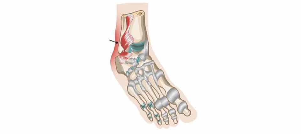tendon