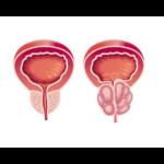 Cancer de la prostate : plus agressif chez les patients obèses