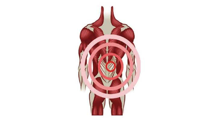 Lombalgie fascias et douleur dos à dos