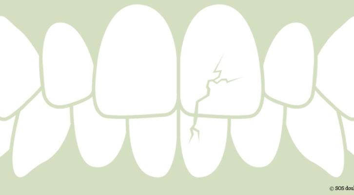 Dysharmonie occlusale et TMD : traitement en synergie avec l'ostéopathe