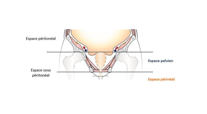 17. Qu'est ce que c'est les Douleurs Pelvi-Périnéales Chroniques Masculines ?