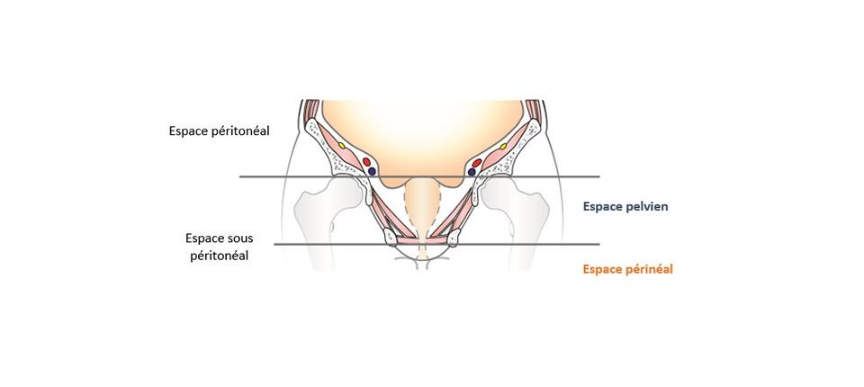 slider_peritoneal