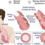 L'infection par un gammaherpèsvirus peut protéger contre l'asthme allergique