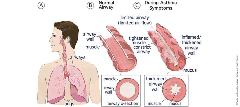 asthma_gamma-herpes-virus-osteomag